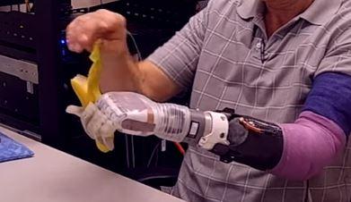 Luke Arm, la extremidad robótica que ayuda a personas sin alguna extremidad